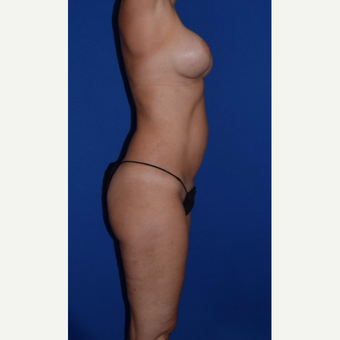35-44 year old treated with Mommy Makeover Breast Augmentation and Liposuction of Abdomen & Thighs after 3105081
