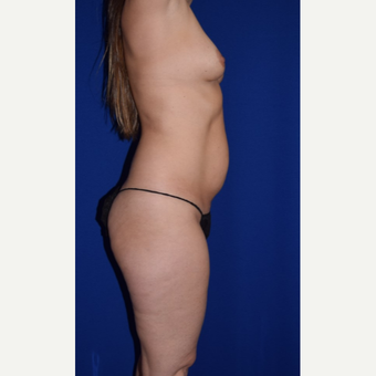 35-44 year old treated with Mommy Makeover Breast Augmentation and Liposuction of Abdomen & Thighs before 3105081