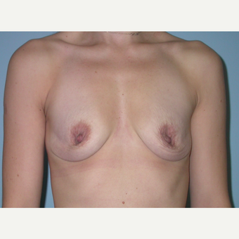 33 year old woman who had breast augmentation.  Size change A to small C.  375 cc HP before 3292109