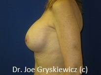 Silicone Breast Augmentation after 1350393