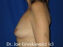 Silicone Breast Augmentation before 1350393