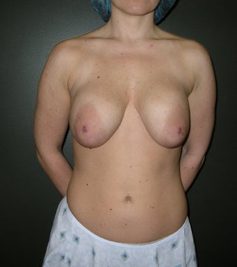 32 year old Bilateral Breast Revision with Lift and placement of Silicone Gel Implants