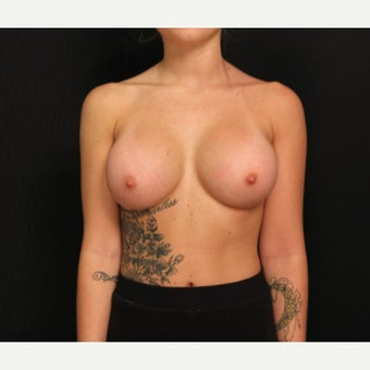 18-24 year old woman treated with Mentor Breast Implants after 2360714