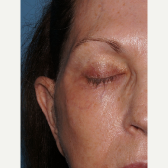 65-74 year old woman treated with ExcelV to remove dark veins around eyes after 3482420