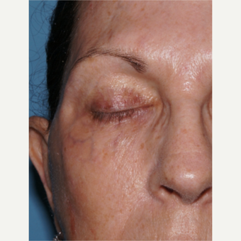 65-74 year old woman treated with ExcelV to remove dark veins around eyes before 3482420