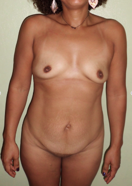 Woman with  Tummy Tuck +Liposuction on sides + Breast Augmentation before 1108948