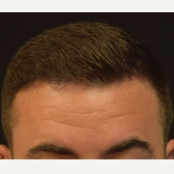 25-34 year old man treated with FUE Hair Transplant after 3685365