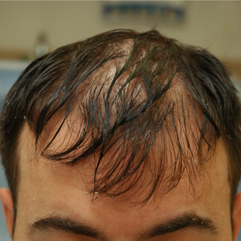 25-34 year old man treated with FUE Hair Transplant before 3685365
