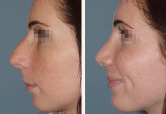 Female Patient, Primary Rhinoplasty