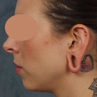 Gauge earlobe repair for extreme size gauges with earlobe lift and reconstruction before 3623480