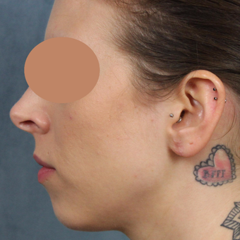 Gauge earlobe repair for extreme size gauges with earlobe lift and reconstruction after 3623480