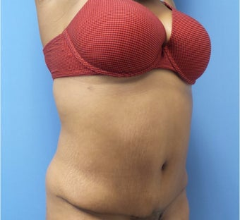 35-44 year old woman treated with Tummy Tuck after 3168295