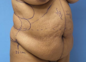 35-44 year old woman treated with Tummy Tuck before 3168295