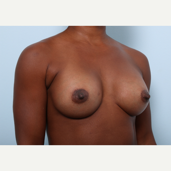 Breast Augmentation after 3345299