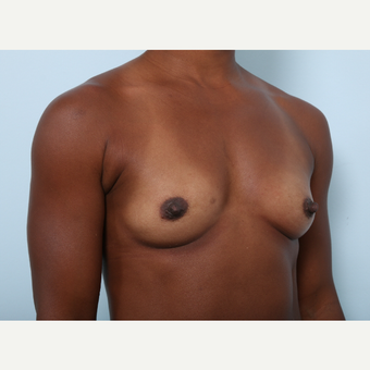 Breast Augmentation before 3345299