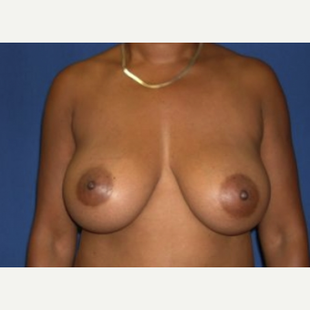 35-44 year old woman treated with Breast Augmentation after 3219994