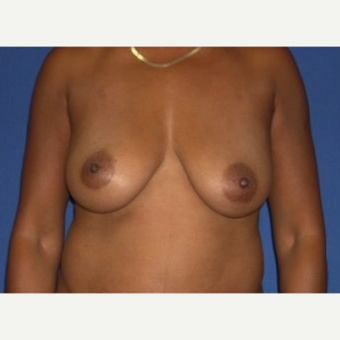 35-44 year old woman treated with Breast Augmentation before 3219994