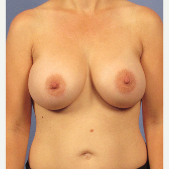 35-44 year old woman treated with Breast Implants after 3106753