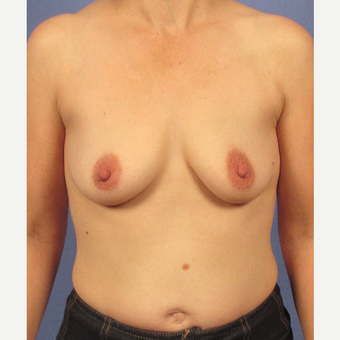 35-44 year old woman treated with Breast Implants before 3106753