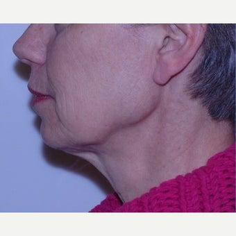 Face and neck lift with deep tissue suspension = Natural results before 2262901