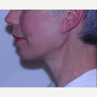 Face and neck lift with deep tissue suspension = Natural results after 2262901