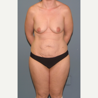 35-44 year old woman treated with Mommy Makeover before 3564482
