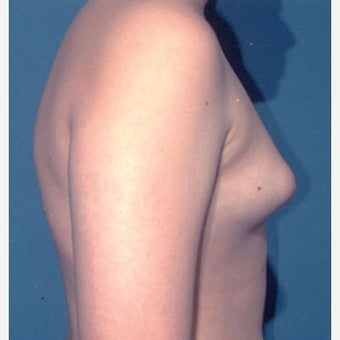 18-24 year old man treated with Male Breast Reduction before 1874435