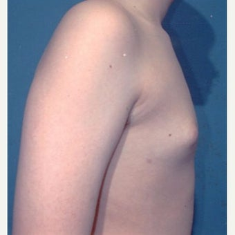 18-24 year old man treated with Male Breast Reduction after 1874435