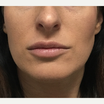 25-34 year old woman treated with Lip Augmentation before 3684546