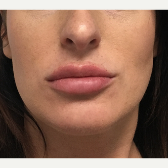 25-34 year old woman treated with Lip Augmentation after 3684546