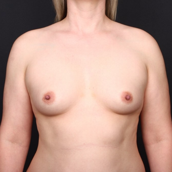 25-34 year old man treated with Breast Augmentation before 3034721