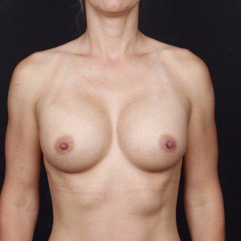 25-34 year old man treated with Breast Augmentation after 3034721
