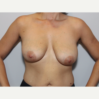 25-34 year old woman treated with Breast Lift before 3576639