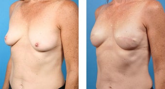 48 Year Old Woman, Cassileth One-Stage Breast Reconstruction 1039926