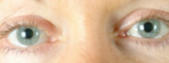 Eyelid Surgery after 502774