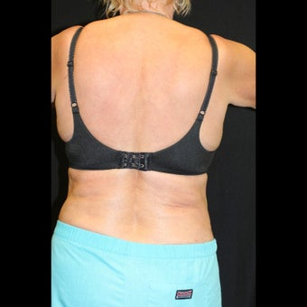 45-54 year old woman treated for CoolSculpting of Hip Rolls after 1528270