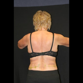 45-54 year old woman treated for CoolSculpting of Hip Rolls before 1528270
