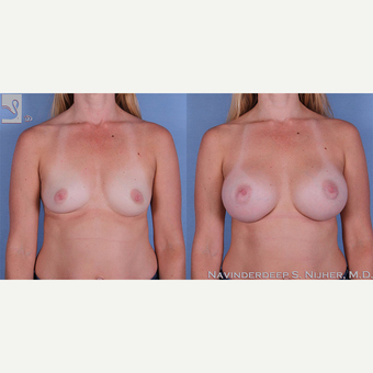 35-44 year old woman treated with Breast Augmentation before 3770094