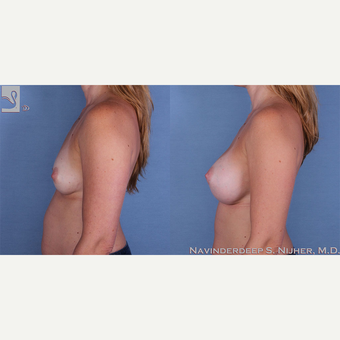 35-44 year old woman treated with Breast Augmentation after 3770094