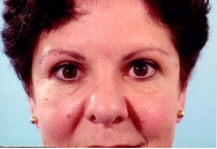 Eyelid Surgery after 3446345