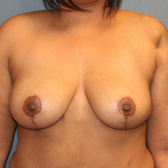 Bilateral Breast Reduction after 3371574