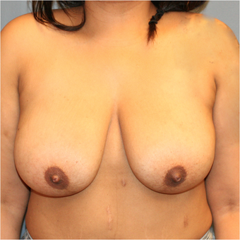 Bilateral Breast Reduction before 3371574