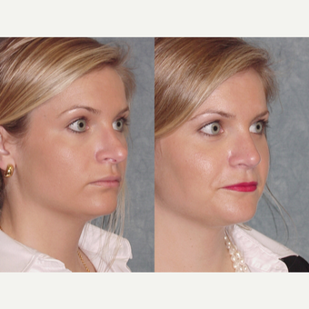 25-34 year old woman treated with Revision Rhinoplasty after 3224067