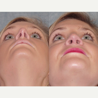 25-34 year old woman treated with Revision Rhinoplasty before 3224067