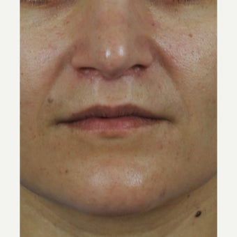 Upper lip lift after 2533453