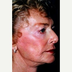 80 year old woman with Liquid Facelift after 1895905