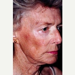 80 year old woman with Liquid Facelift before 1895905