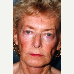 80 year old woman with Liquid Facelift 1895905
