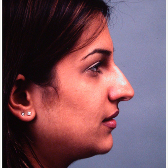 18-24 year old man treated with Rhinoplasty before 3686905
