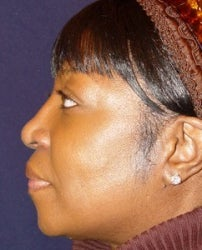 Rhinoplasty Side View after 874489